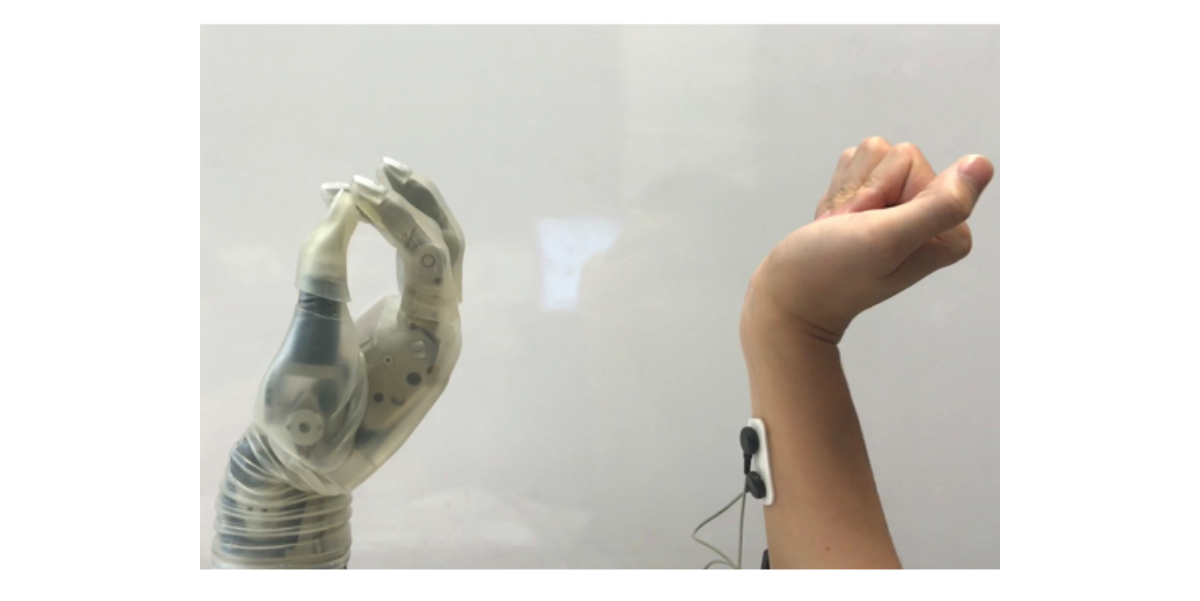 Medical Device News: New-tech-could-make-prosthetic-hands-easier-to-use