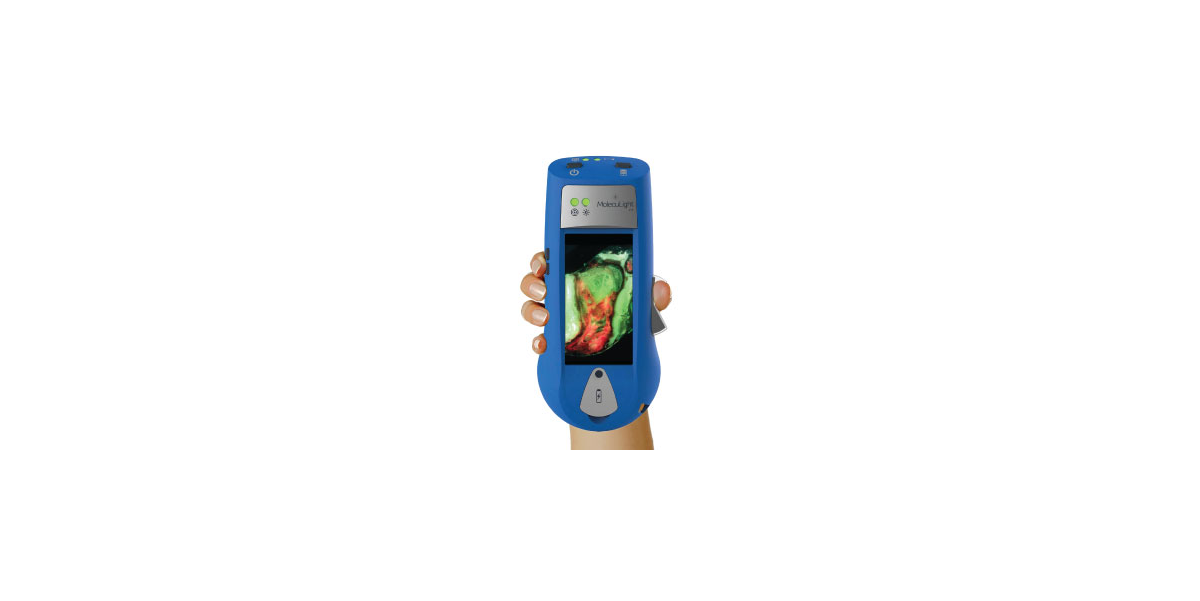 Medical Device News: MolecuLight-wins-FDA-de-novo-nod-for-handheld-fluorescence-wound-imager