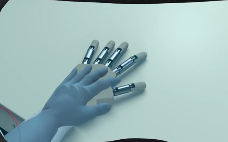 Medical Device News: Virtual-Reality-and-Neural-Stimulation-to-Help-Amputees-Use-Their-Prostheses