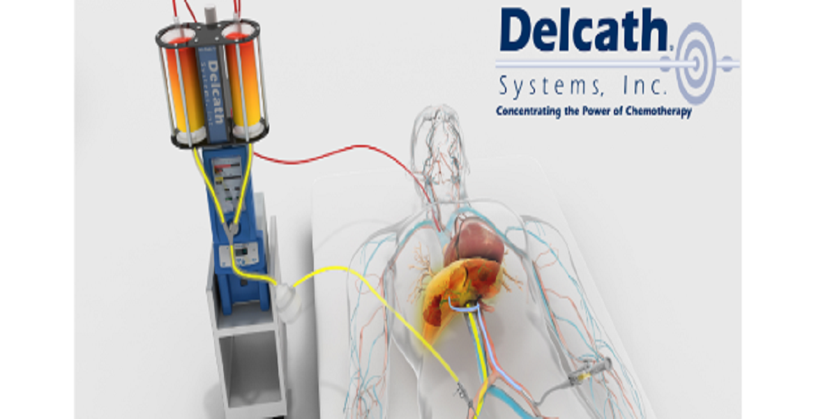 Medical Device News: Delcath-Systems-raises-another-$95m